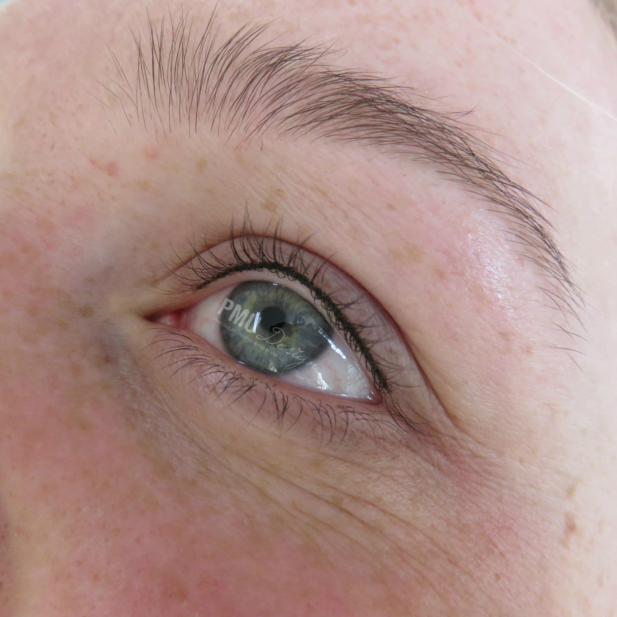 Infralash direct na de 1e behandeling. Kleur en vorm worden zachter na genezing van de huid.